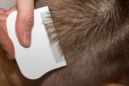eradication: Searching for lice on a childs head with a white comb Stock Photo