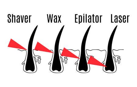 cabello: Diagrama vectorial de diferentes métodos de depilación