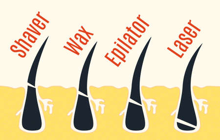 The methods of hair removal. Vector illustration.