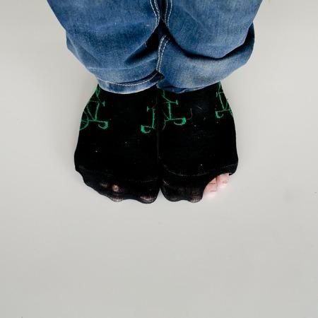 tatter: desgastado calcetines con un agujero y los pies que salen de ellos en el suelo blanco