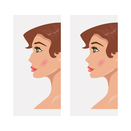 ugliness: Illustrations of women with a hooked nose and a direct Illustration