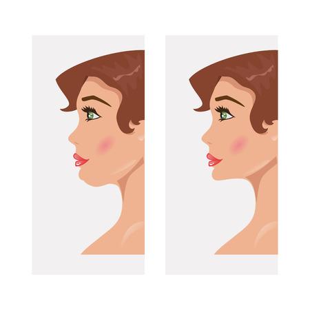 Illustration einer Frau mit einem Doppelkinn und einem normalen Kinn Chirurgie