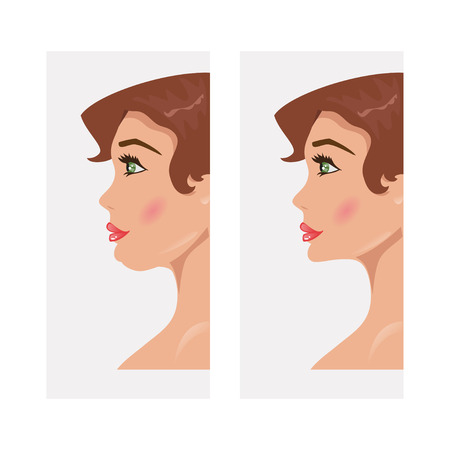 double chin: Illustration of a woman with a double chin and a normal chin surgery