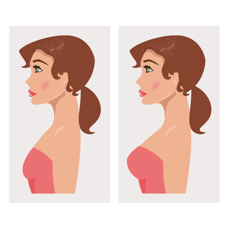 Illustration of a woman with breast before and after mammoplasty