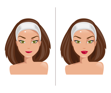 plastic surgery: Illustration girl with lips before and after plastic surgery Illustration