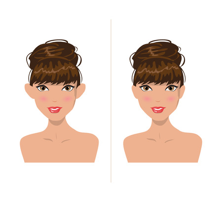 protruding: Illustration of a girl before and after plastic ears Illustration