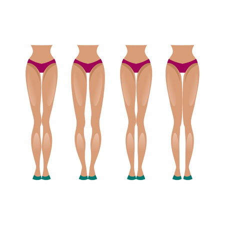 is slender: Illustration slender legs and feet with different types of curvature