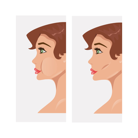 Girl before and after plastic surgery of the cheeks Illustration