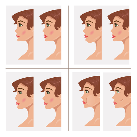 corrections: Woman before and after rhinoplasty and plastic surgery of lips, nose and cheeks Illustration