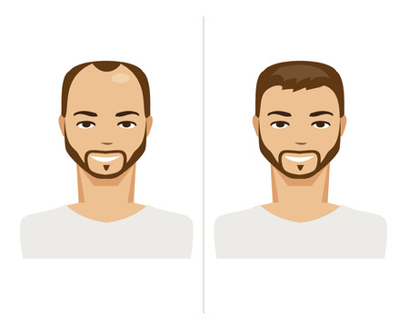 baldness: Illustration of men before and after implantation of hair