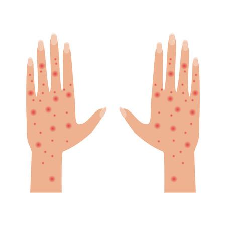 Les mains avec la maladie dermatologique de la peau, des éruptions cutanées, l'eczéma