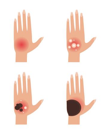 De eerste, tweede, derde en vierde graads brandwonden van de huid