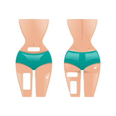 weight loss: The female figure front and back with a patch for weight loss Illustration