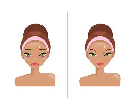overwork: Woman with bags under his eyes and a healthy woman. Before and after