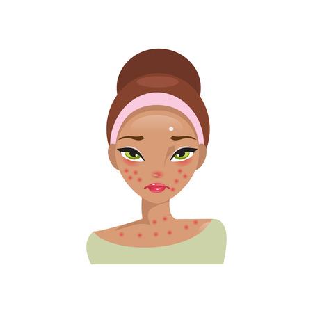 Illustratie van een jong meisje die lijden aan allergieën Vector Illustratie
