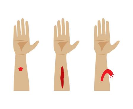 hemorragias: Tipos de sangrado. Capilar, venosa y arterial sangrado Vectores