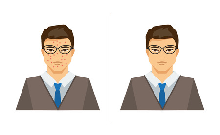 Illustration on medical theme, a man with pimples and a man with healthy skin