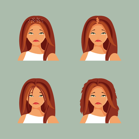 Girl with a different hair problems - dandruff, oily, split, baldness Vector illustration