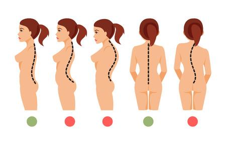 Tipos de deformación de la columna vertebral Escoliosis, lordosis, cifosis. Postura correcta e incorrecta. Ilustración del vector