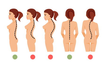 Types of deformation of the spine Scoliosis, lordosis, kyphosis. Correct and incorrect posture. Vector illustration