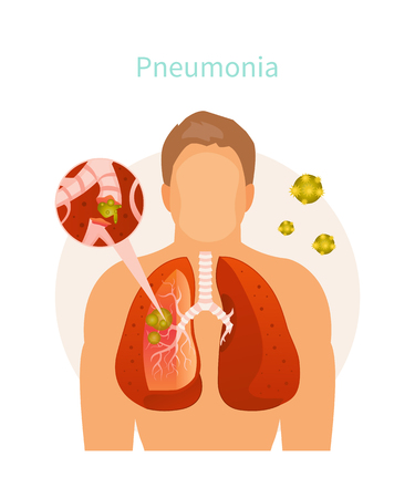 Vector illustration of human body with inflamed lungs. Pneumonia