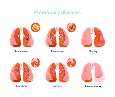 Set lung diseases. Tuberculosis, pneumonia, pleurisy, bronchitis asthma and pneumatox Vector illustration