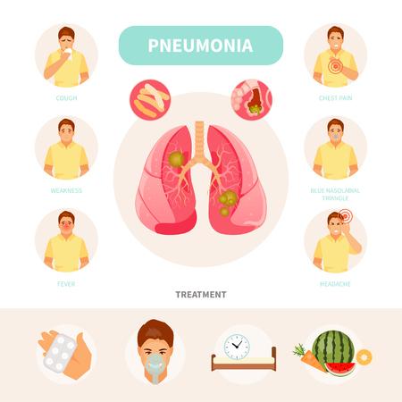 Männlicher Charakter mit den Symptomen und Behandlung von Lungenentzündung. Vektor medizinische Infografiken, Poster
