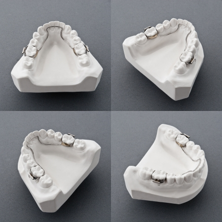 dentition: Mold of  human teeth Stock Photo