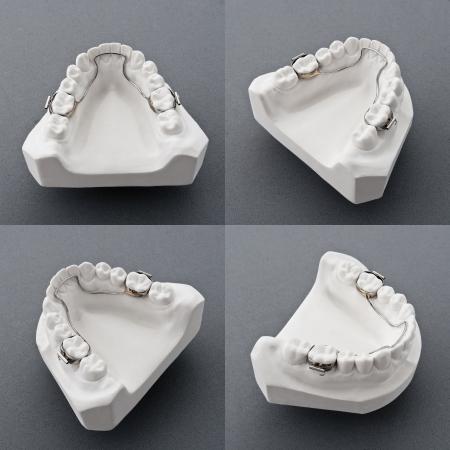 Mold of  human teeth Stock Photo - 9035509