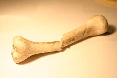 broken bone Stock Photo