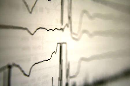 polygraph: Lie Detector