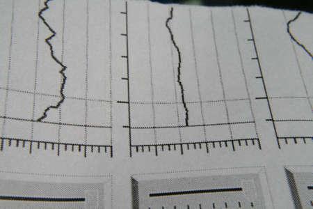 polygraph: Detection