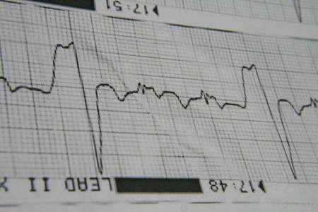 to lie: EEG