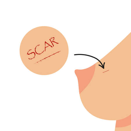Scar after surgery on the female breast. Breast cancer treatment prevention medical concept. Flat vector illustration.