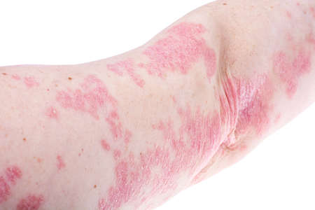 Dermatological skin disease psoriasis, more pronounced on elbow, hand. Redness and dry patches, allergic rash dermatitis, eczema of skin. Studio Photo