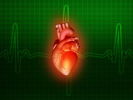 Herzkrankheit: Herzerkrankungen 3d Anatomie Abbildung Gesundheit gr�n