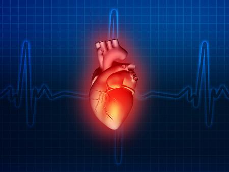 Herzkrankheit: Herzerkrankungen 3d Anatomie Abbildung Gesundheit blau