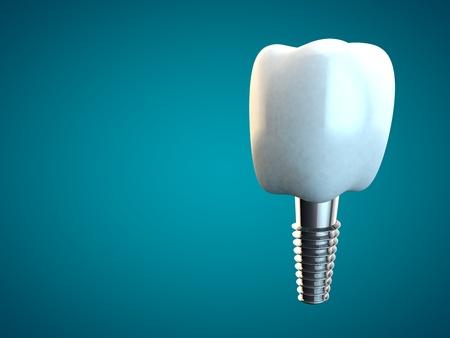 Tooth molar implant Dental Hygiene Dentist 3D rendering blue