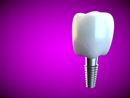 dental care: Tooth molar implant Dental Hygiene Dentist 3D rendering pink Stock Photo