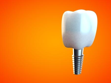 molar: Tooth molar implant Dental Hygiene Dentist 3D rendering orange