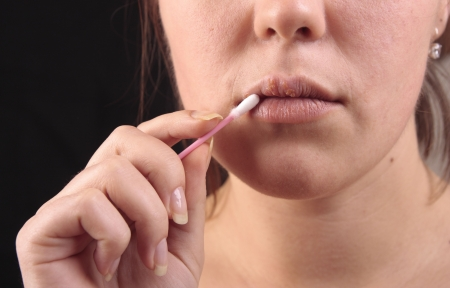 Lips affected by herpes. Treatment with a cotton swab. Standard-Bild
