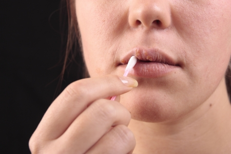 affected: Lips affected by herpes. Treatment with a cotton swab. Stock Photo