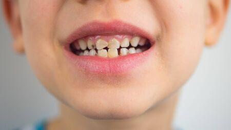 Porträt eines Jungen im Schlafanzug, schlechte Zähne, Nahaufnahme.