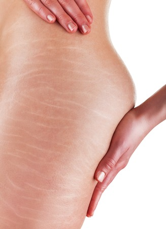 A woman is testing the skin on the thigh for the presence of stretch marks and cellulite