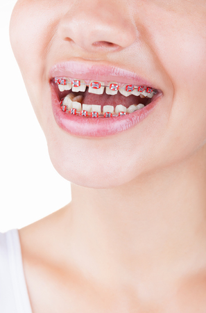 fix jaw: Close-up of young girl smiling with braces. Isolated on white background