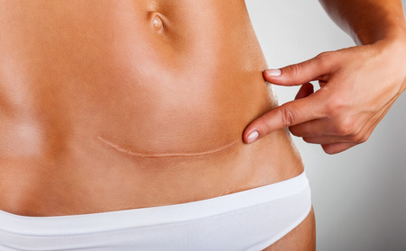 Nahaufnahme der Frau Bauch mit einer Narbe von einem Kaiserschnitt Standard-Bild