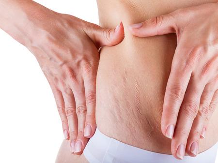 Frau ist die Prüfung der Haut auf dem Bauch auf breit, das Vorhandensein von Schwangerschaftsstreifen