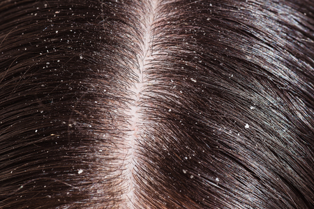 secretion: A womans unhealthy dry head skin close