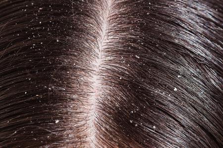 Eine Frau, die ungesunde trockene Kopfhaut schließen