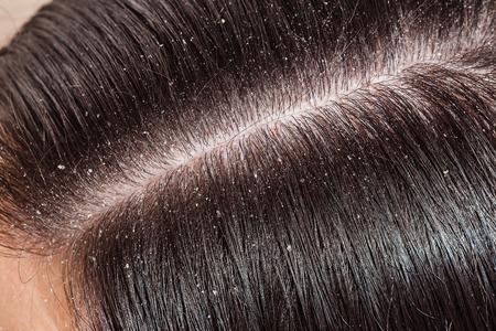 Dandruff is visible on dark hair female